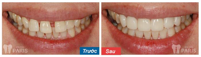 3 lưu ý khi bọc răng sứ thẩm mỹ bạn CẦN PHẢI BIẾT 4