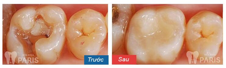 Ảnh hưởng của bệnh sâu răng và cách ngăn chặn hiệu quả 2