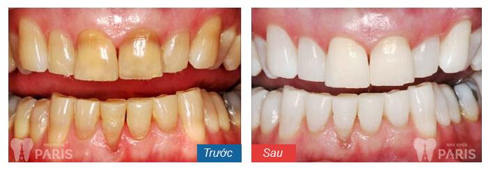 Địa chỉ tẩy trắng răng ở hà nội 2