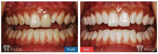 Địa chỉ tẩy trắng răng ở hà nội 3