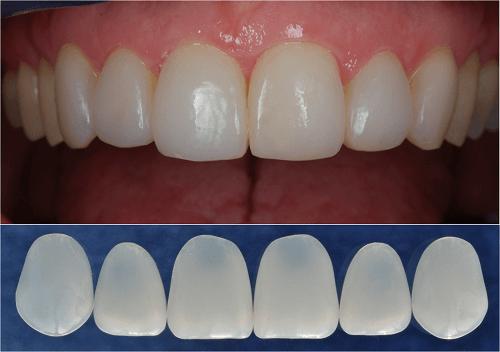 Làm răng veneer sứ khi nào có thể thay thế bọc răng sứ? 1