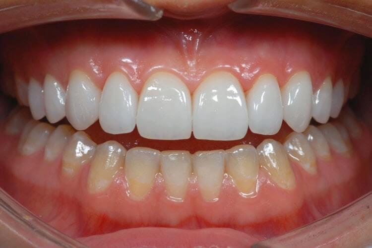Làm răng veneer sứ khi nào có thể thay thế bọc răng sứ? 2