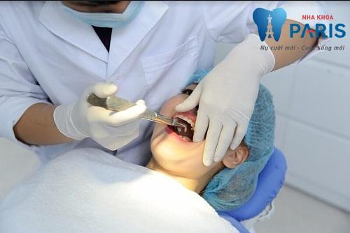 Nhổ răng không trồng lại có sao không? 1