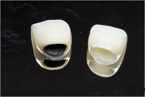 Tuổi thọ của răng sứ Titan cao nhất là bao lâu? 1