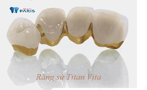 Bọc răng sứ Vita