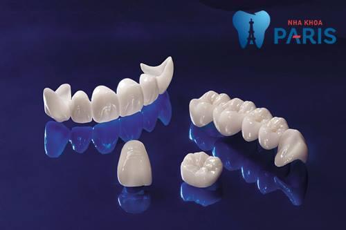 Bọc răng sứ dùng được bao lâu thì NÊN bọc lại? [BS Tư Vấn] 3