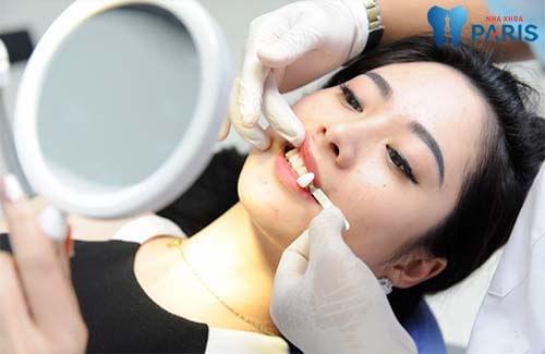 bọc răng sứ giá bao nhiêu tiền tại Sài Gòn 1