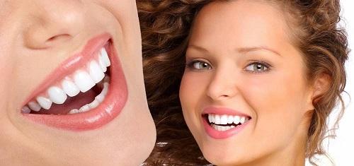 Bọc răng sứ có đẹp không 1