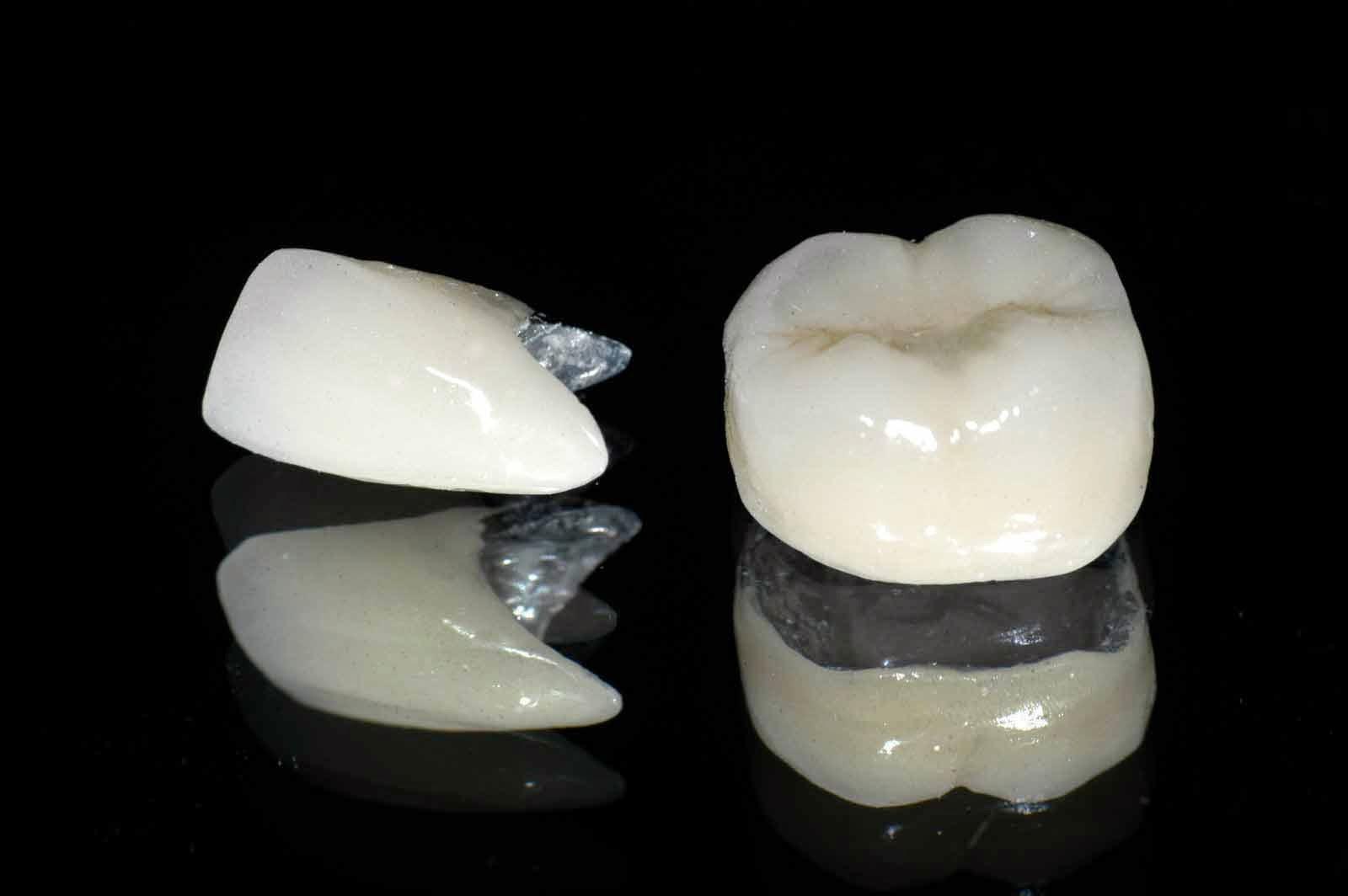 Bọc răng sứ sử dụng được bao lâu thì phải làm lại?【Chuyên gia tư vấn】 3