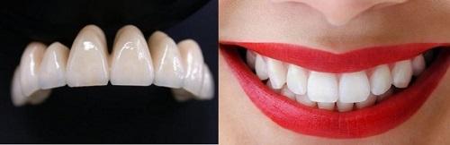 Hướng dẫn lựa chọn răng sứ màu nào đẹp và phù hợp nhất 1