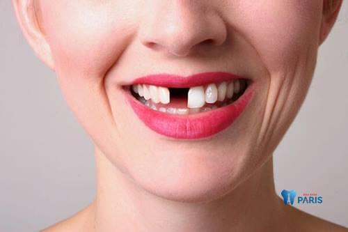 Phương pháp làm răng cửa giả ĐẸP & BỀN CHẮC nhất năm 2018 1