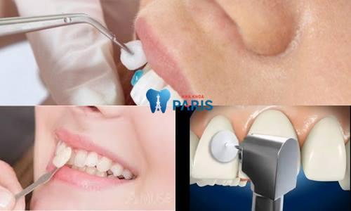 Phương pháp làm răng cửa giả ĐẸP & BỀN CHẮC nhất năm 2018 2