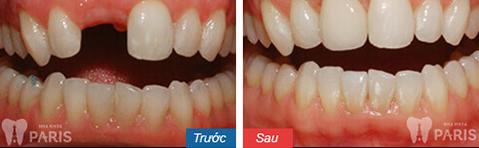 Cầu răng giúp khôi phục răng bị mất tiết kiệm chỉ phí