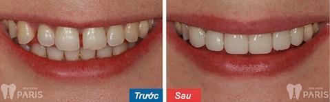 Mặt dán Veneer sứ - Bí mật của hàm răng hoàn hảo 7