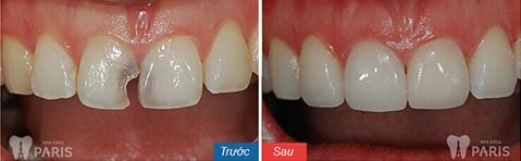 Mặt dán Veneer sứ - Bí mật của hàm răng hoàn hảo 5