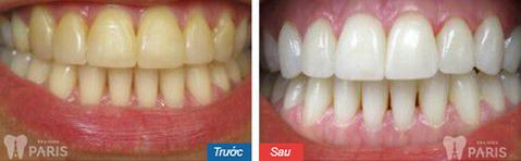 Mặt dán Veneer sứ - Bí mật của hàm răng hoàn hảo 6