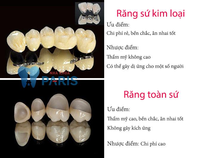 Bọc răng sứ bao nhiêu tiền ở Đà Nẵng? Chất lượng có tương xứng? 1