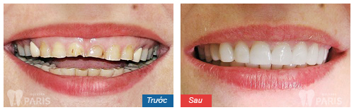Có nên làm mặt dán sứ Veneer để cho hàm răng ĐỀU & ĐẸP không?
