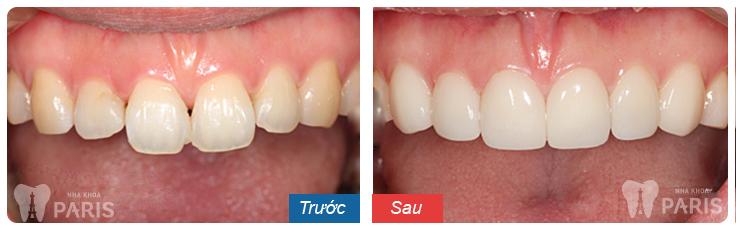 Một số hình ảnh kết quả mài răng, bọc sứ tại nha khoa Paris 3