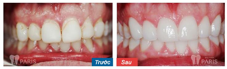 Răng to và vẩu hoàn toàn có thể mài nhỏ