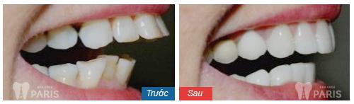 Có nên bọc răng sứ không? Chuyên gia giải đáp 3