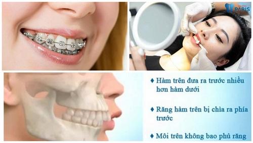Răng vẩu có di truyền không 2