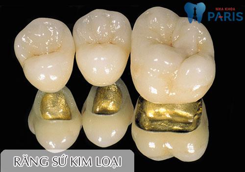 Bọc răng sứ giá bao nhiêu? Bọc răng sứ kim loại