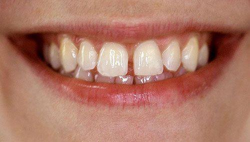 Tại sao răng thưa 2