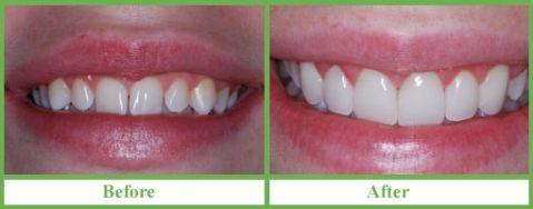 Giá ốp răng sứ có giống với bọc răng toàn sứ không? 1