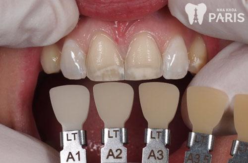 Răng bị mòn rìa cắn có bọc sứ được không? Chuyên gia tư vấn - ảnh 1