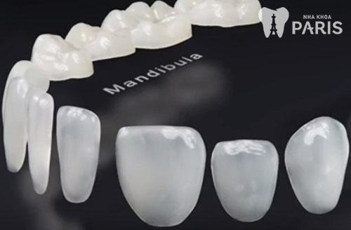 Làm răng Direct Veneer giá bao nhiêu tiền 1