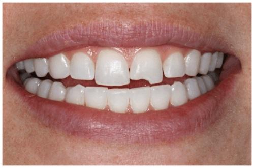 Mè răng là diềm gì 1