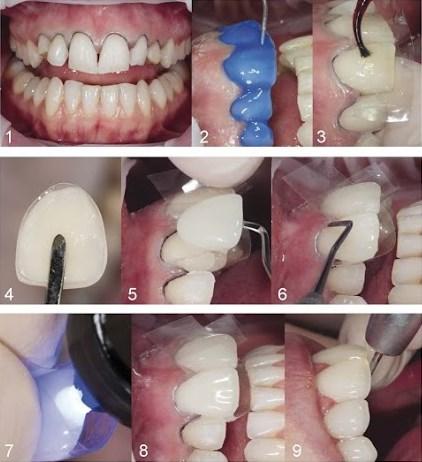 Quy trình làm răng Direct Veneer 1