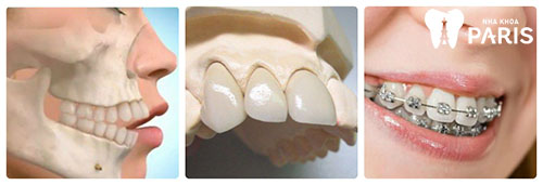 Răng hô là gì 2