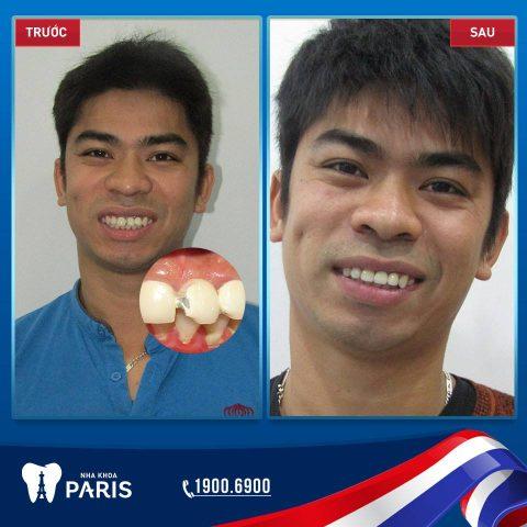Khách hàng Nguyễn Thế Long, trám răng cửa kết hợp bọc răng sứ cho răng hàm bị mẻ.