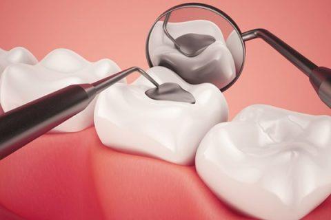 Làm gì khi bị mẻ răng để tiết kiệm chi phí nhất thì chỉ có thể là trám răng thẩm mỹ