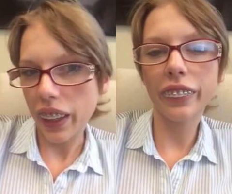 Cách chữa răng vẩu (răng hô) AN TOÀN & HIỆU QUẢ sau 1 lần điều trị 2