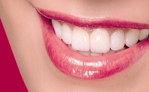 Sứt răng cửa làm sao để khắc phục? Cách trị răng bị sứt mẻ hiệu quả 1