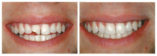 Sứt răng cửa làm sao để khắc phục? Cách trị răng bị sứt mẻ hiệu quả 2