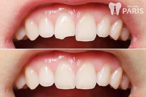 Cách làm răng hết mẻ 1