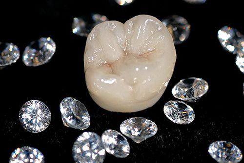 Bọc răng sứ titan có bị đen viền nướu không? Chuyên gia giải đáp 1