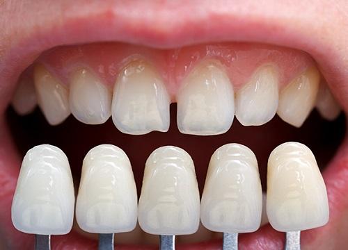 Răng thưa hàm trên 1