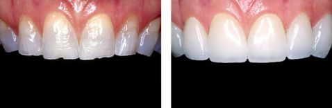 3 Yếu tố quyết định có nên bọc răng sứ E.Max cho răng cửa bị mẻ 1