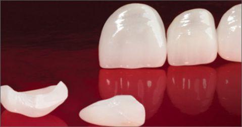 3 Yếu tố quyết định có nên bọc răng sứ E.Max cho răng cửa bị mẻ 2
