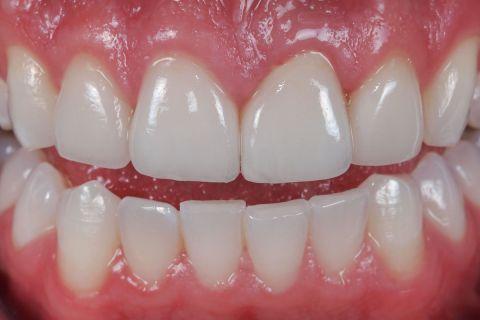 3 Yếu tố quyết định có nên bọc răng sứ E.Max cho răng cửa bị mẻ 3