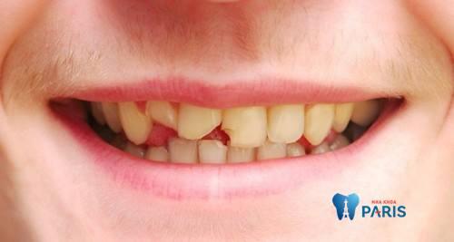 Phục hồi răng cửa bị mẻ và những thắc mắc liên quan 1