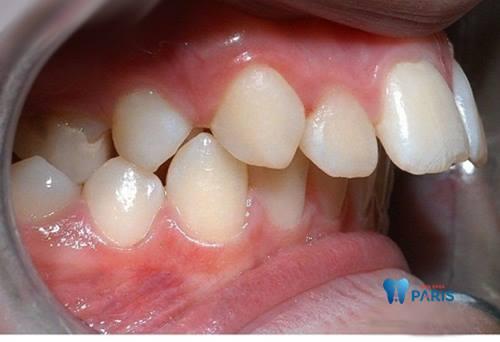 Răng hô phải làm sao để khắc phục nhanh chóng? 2