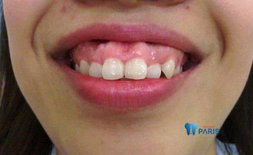 Răng hô phải làm sao để khắc phục nhanh chóng? 1