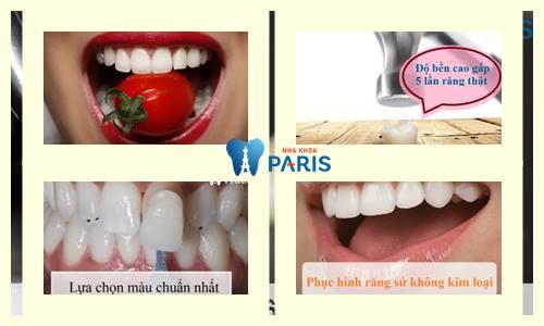 Bọc răng sứ loại nào tốt nhất có thể bạn chưa biết 3