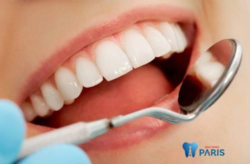 Bọc răng sứ loại nào tốt nhất | Bọc răng sứ thẩm mỹ